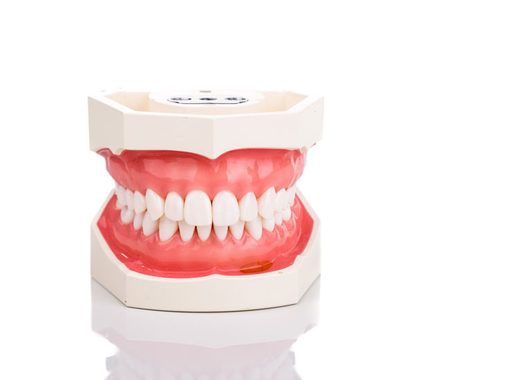 abcesso-dentário-01