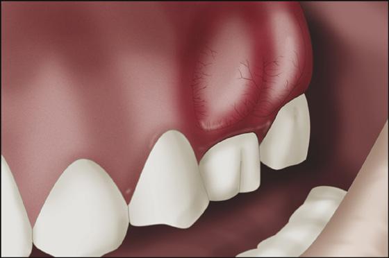 abcesso-dentário-03