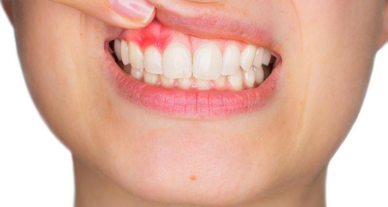 abscesso-dentário-01