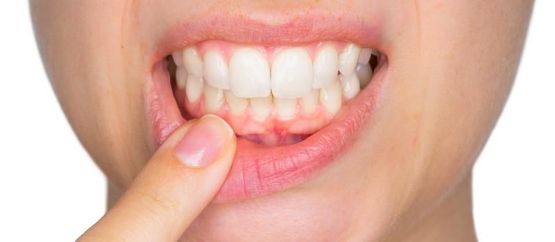 abscesso-dentário-02