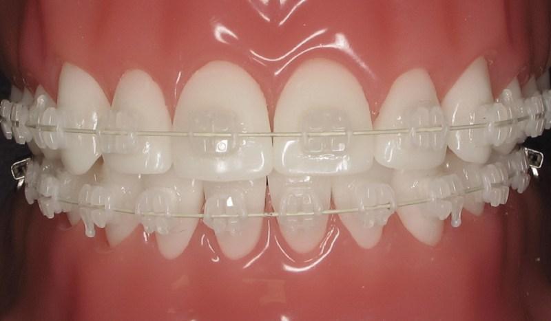 Utilizando-aparelho-de-dente-02