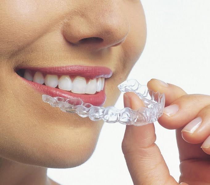 Utilizando-aparelho-de-dente-03