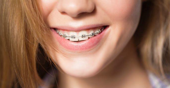 aparelho-dental-03