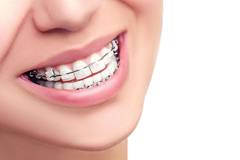aparelho-dental-transparente-01