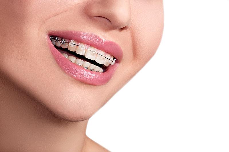 aparelho-dental-transparente-02