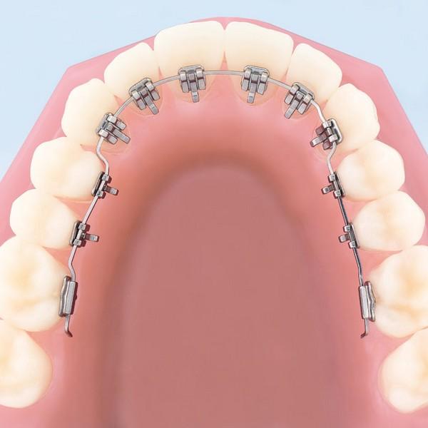 aparelho-dental-transparente-03