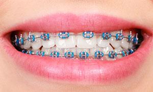 aparelho-dentário-01