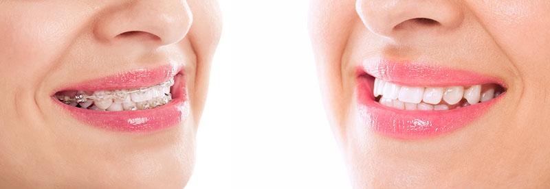 aparelho-odontológico-estético-01