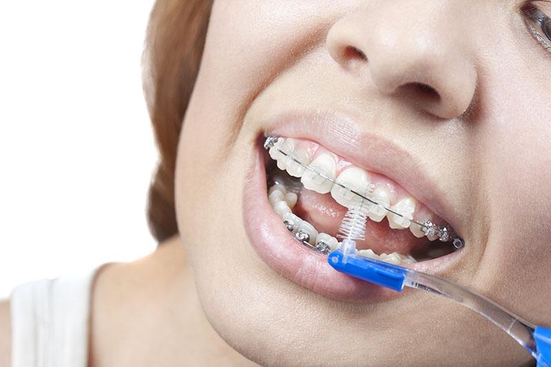 aparelho-odontológico-estético-02