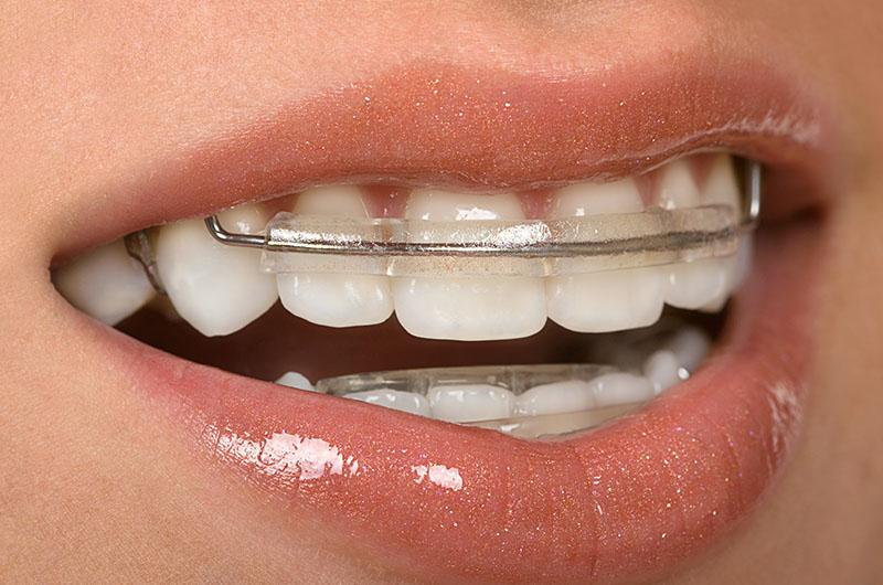 aparelho-odontológico-estético-03
