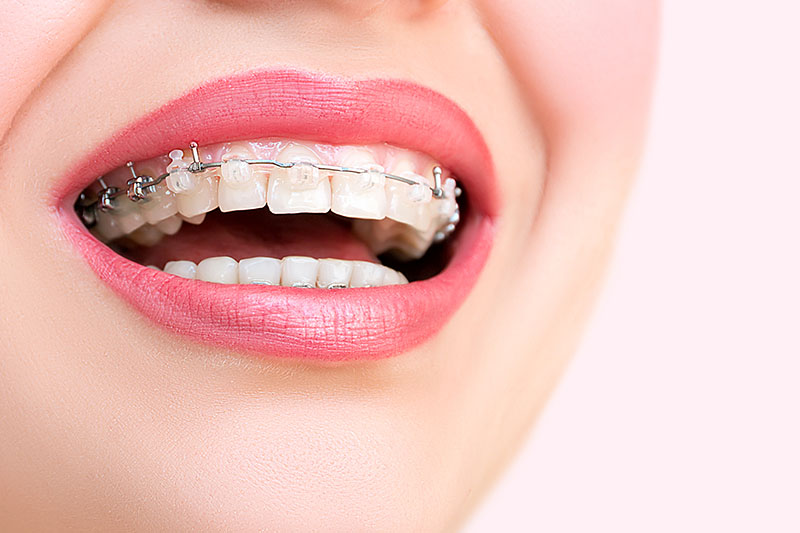 aparelho-odontológico-móvel-01