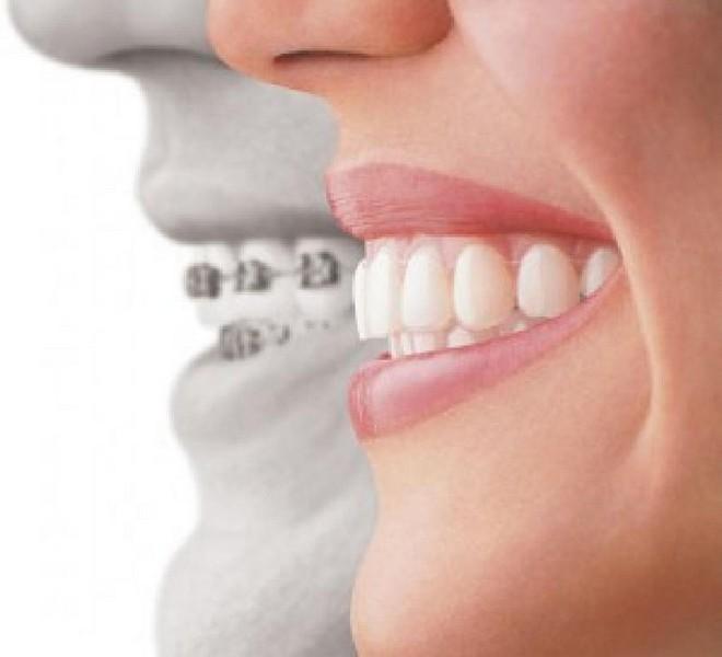 aparelho-odontológico-móvel-02
