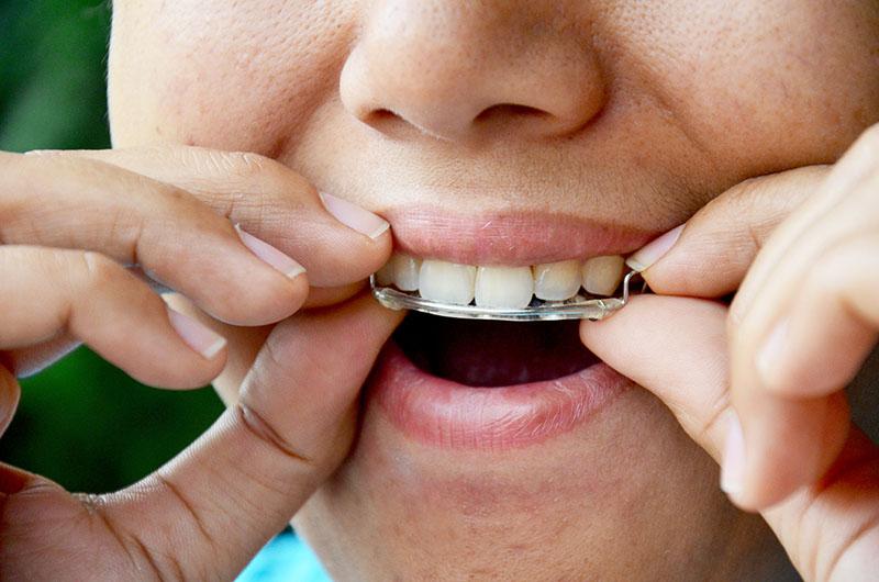 aparelho-odontológico-móvel-03