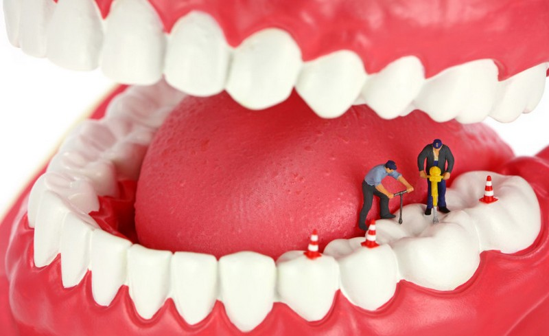 canal-dentário-02