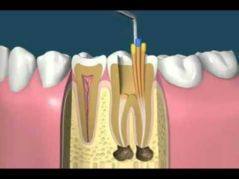 canal-no-dente-01