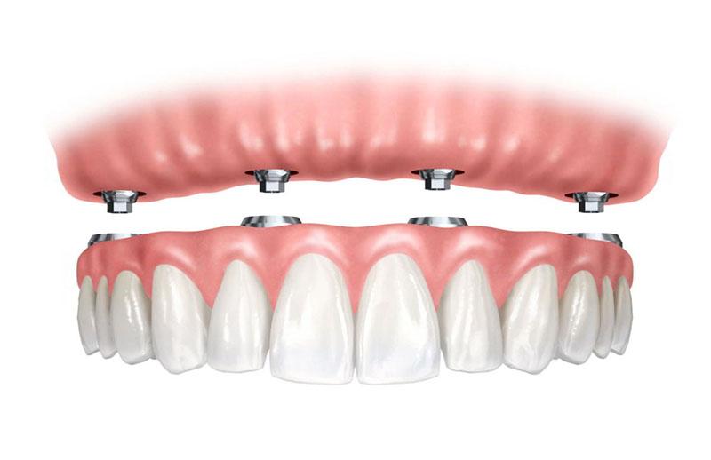 carga-imediata-implante-01
