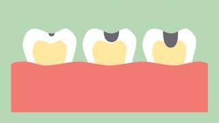 cárie-dentária-tratamento-03