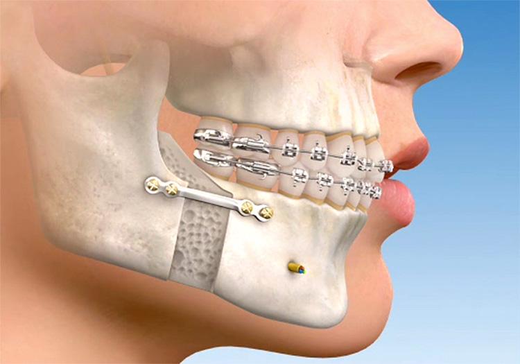 cirurgia-ortognatica-03