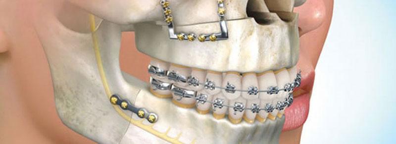 cirurgia-ortognática-estética-02