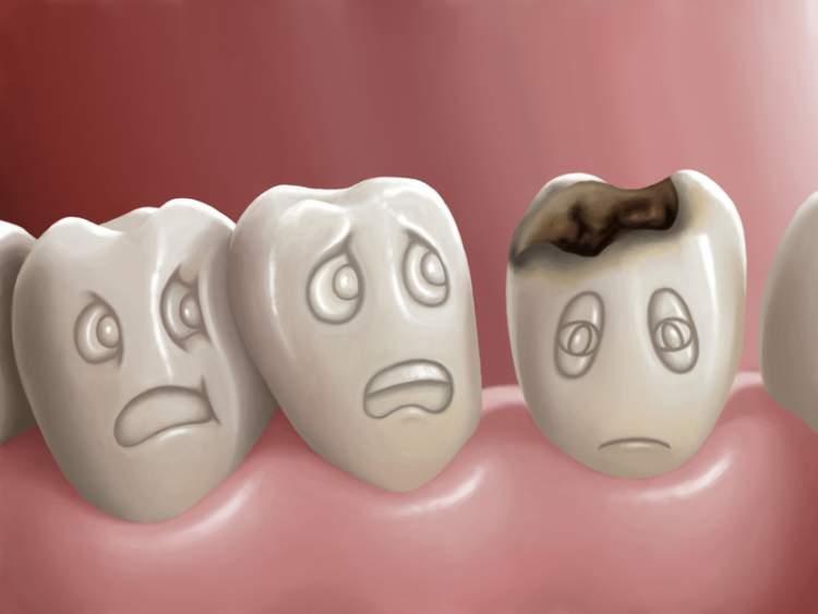 como-aliviar-dor-de-dente-furado-01