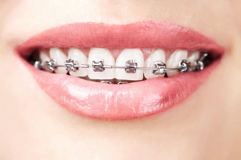 como-deixar-os-dentes-branco-com-aparelho-01