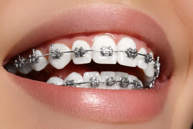 como-deixar-os-dentes-branco-com-aparelho-02