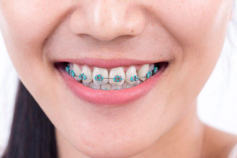 como-deixar-os-dentes-branco-com-aparelho-03