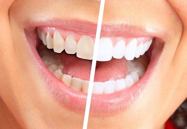 como-desinflamar-um-dente-02