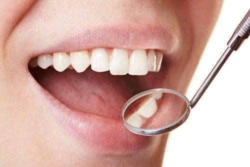 como-se-forma-a-placa-bacteriana-nos-dentes-01