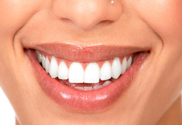 como-se-forma-a-placa-bacteriana-nos-dentes-02