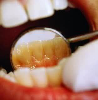 como-se-forma-a-placa-bacteriana-nos-dentes-03
