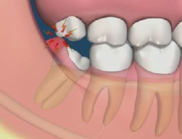 como-tirar-inflamação-do-dente-01
