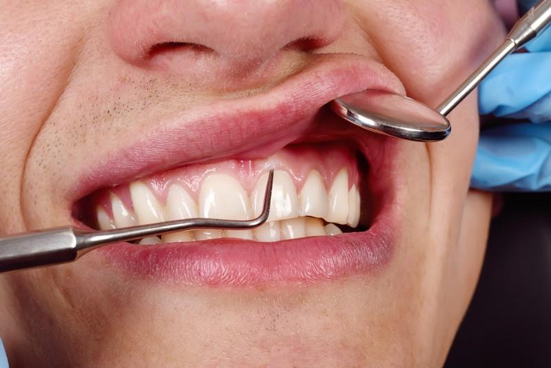 como-tirar-inflamação-do-dente-02
