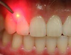 como-tirar-inflamação-do-dente-03