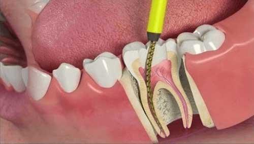 dente-aberto-canal-03