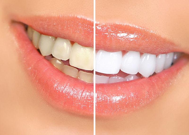 dente-acinzentado-01