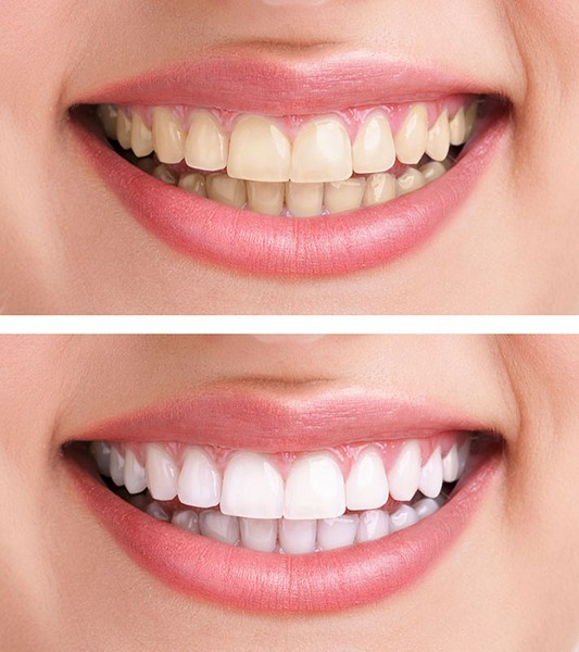 dente-acinzentado-02