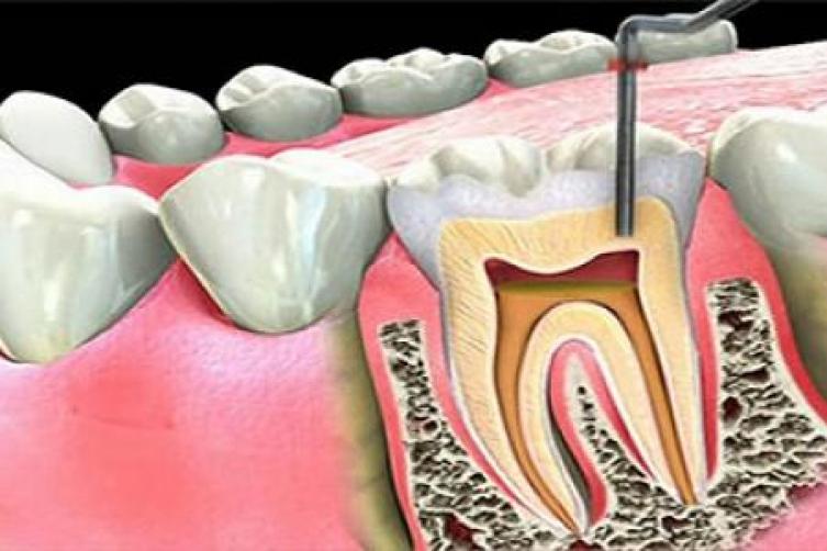 dente-inflamado-01