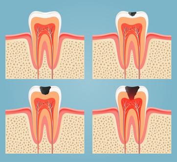 dente-inflamado-02