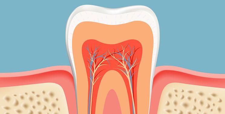 dente-inflamado-03