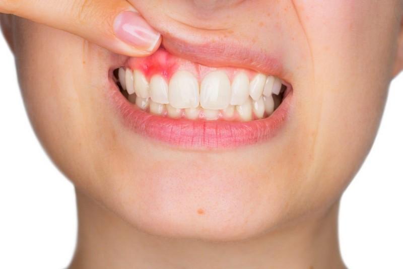dente-inflamado-rosto-inchado-01