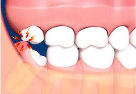 dente-siso-01