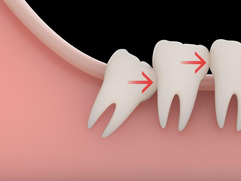 dente-siso-02