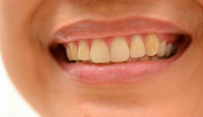 dentes-amarelos-depois-de-tirar-o-aparelho-03