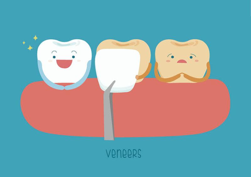 Dentes-de-porcelana-01