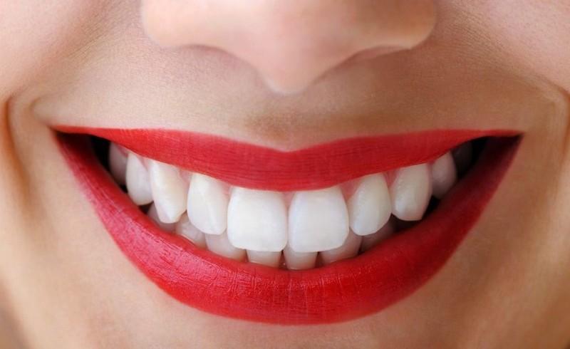 dentes-perfeitos-02