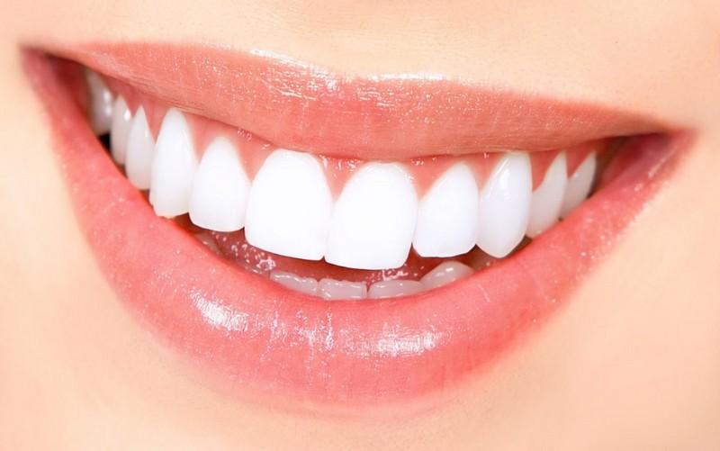 dentes-perfeitos-03