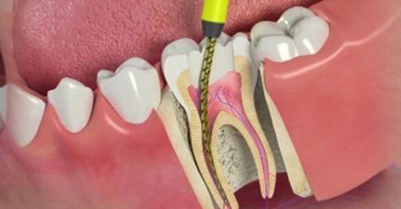 dentista-especialista-em-tratamento-de-canal-01