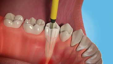 dentista-especialista-em-tratamento-de-canal-03