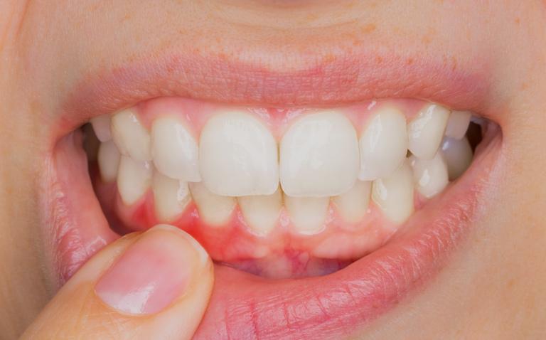 dor-de-dente-constante-02